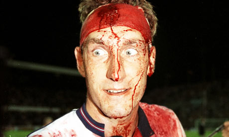 Terry Butcher. You know the one.